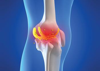 Fortune Journal of Rheumatology